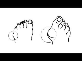 Упражнение от косточки у большого пальца