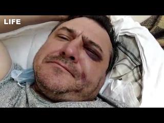 """Экс-солисту """"Лесоповала"""" сломали челюсть в Сочи"""